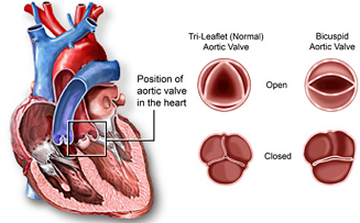 Bicuspid Aortic Valve Disease: The aortic valve has two leaflets instead of three leaflets.