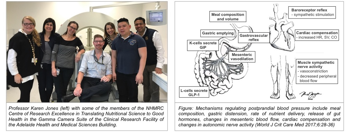 Professor Jones with members of the NHMRC CRE in Translating Nutritional Science to Good Health (left) and Mechanisms of postprandial hypotension (right)