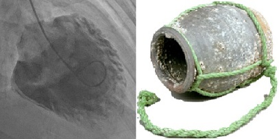 Takotsubo cardiomyopathy: The LV ventriculography (left) resembles an octopus trap (right).